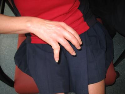 Jackie\'s finger