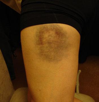 Lisa\'s bruise